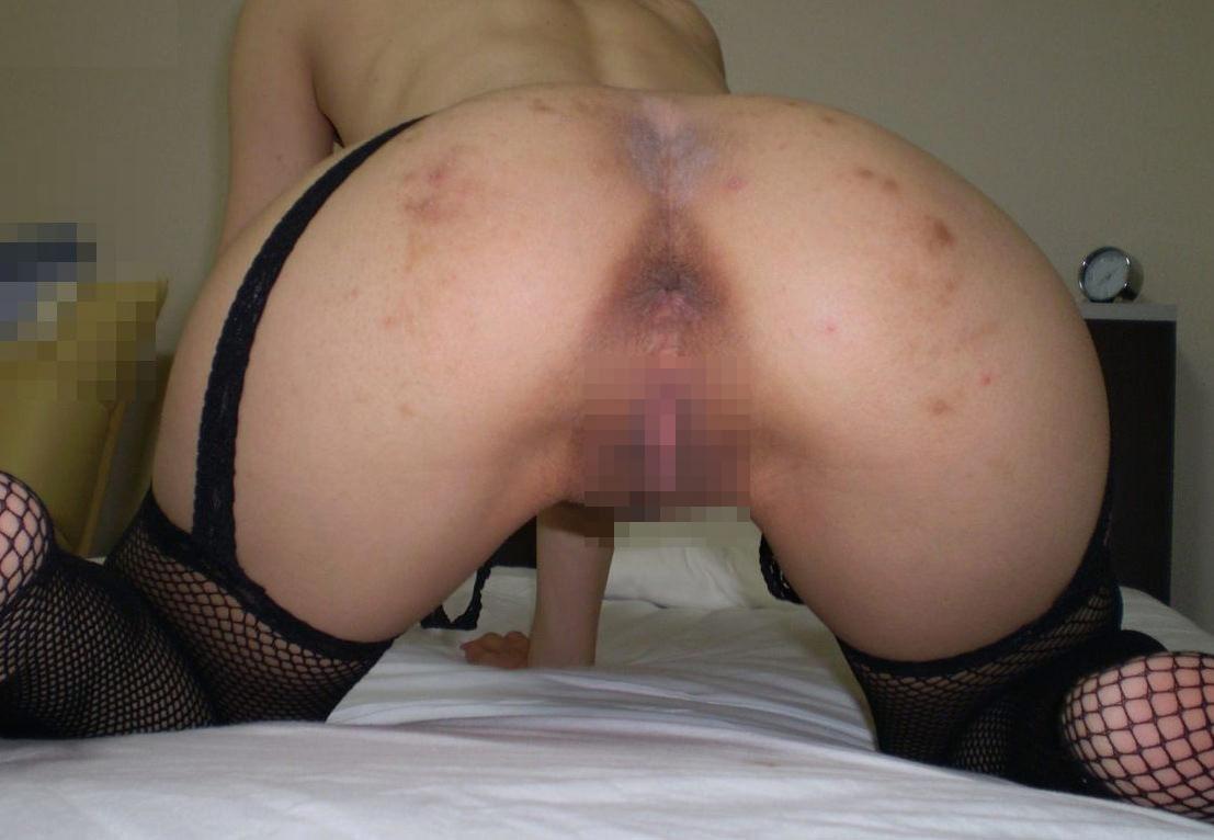 人妻熟女のドス黒いアナルがガチで汚ないwwwでもチンコはビンビンですwww 0101